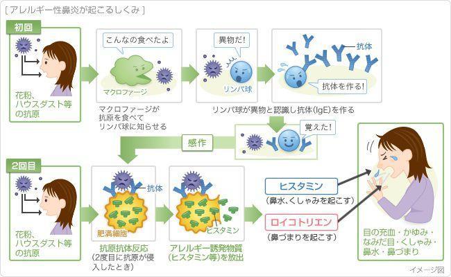アレルギー性鼻炎が起こる仕組み