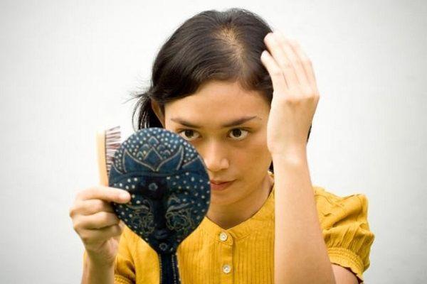 抜け毛で薄くなった分け目を気にする女性