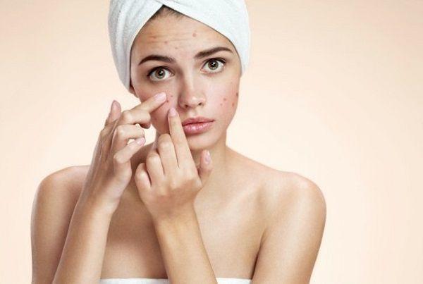 acne-girl_comp