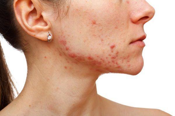 繰り返す女性の顎ニキビの原因