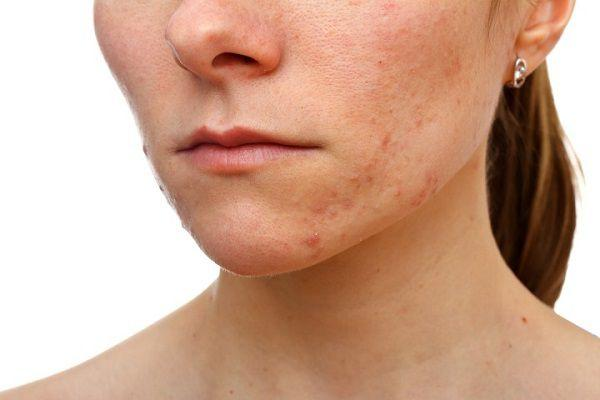 皮膚科での顎ニキビ治療