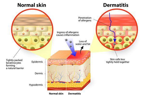 肌バリア機能の低下