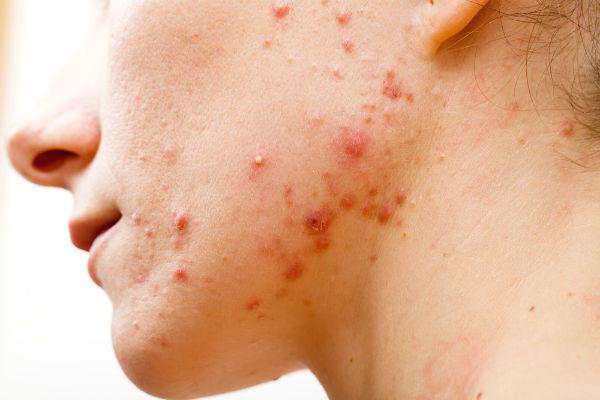 ニキビの炎症による赤ら顔