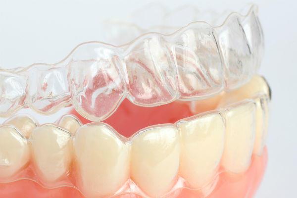 歯ぎしり防止用マウスピース